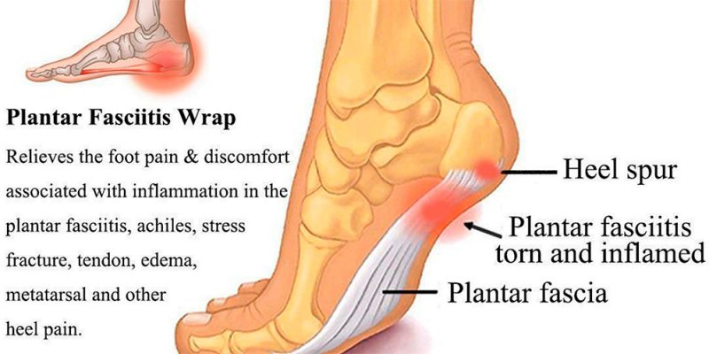 Are You At Risk For Developing Plantar Fasciitis?